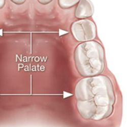 Casper Orthodontic Appliances | Space Maintainers | Palatal Expanders
