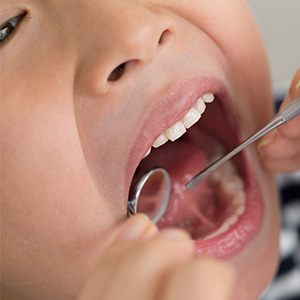 Closeup of child receiving dental exam