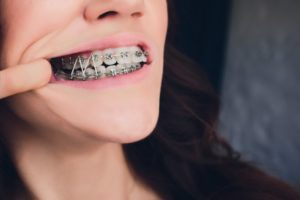 a person wearing rubber bands on their braces